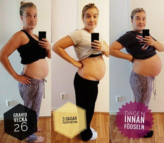 gördel efter förlossning